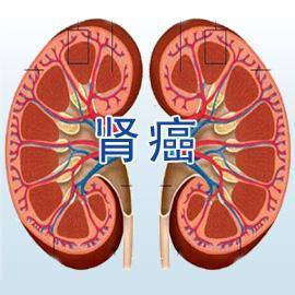 腎癌的治療方法大盤點