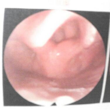 喉癌的危害主要有哪些