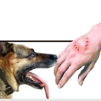 狂犬病早期症状需谨慎处理