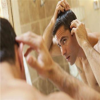 中年男人怎么预防斑秃?