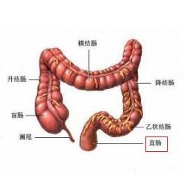 直肠炎和直肠癌症状的区别?