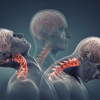 患上骨质增生怎么办?治疗有诀窍