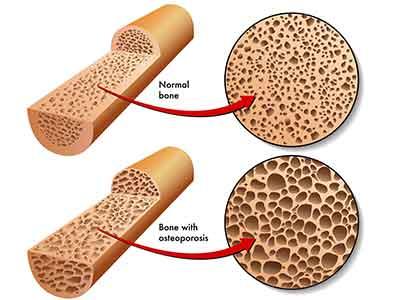 生活中骨质疏松这种疾病该怎么治疗