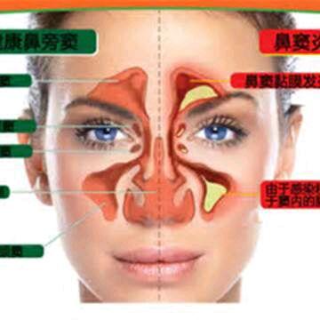 鼻炎与鼻窦炎有何区别?鼻窦炎怎么治疗好?