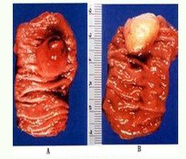 脂肪瘤是因为哪些生活习惯导致的