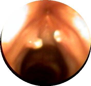 治療聲帶息肉采用手術的效果
