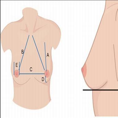 准妈妈患乳腺炎加强护理是关键