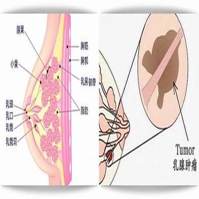 乳腺纤维瘤能怀孕吗 大多和患者有关