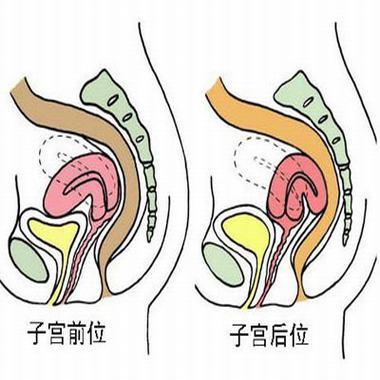 子宮肌瘤造成的危害有哪些?