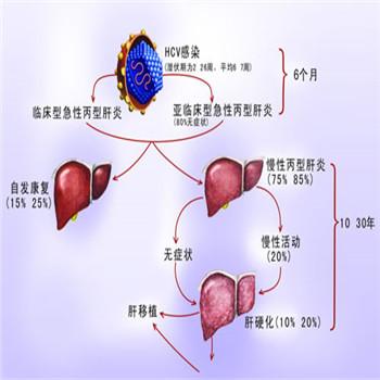 乙型肝炎早期癥狀有哪些