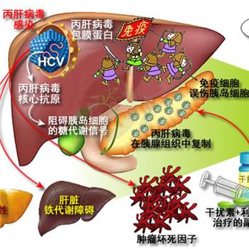 甲肝乙肝丙肝三種病毒分別是如何傳播的