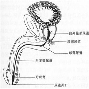 非淋菌性尿道炎的发病的病因