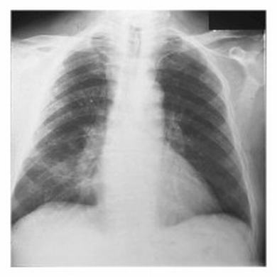 肺炎好治吗 肺炎的食疗方法