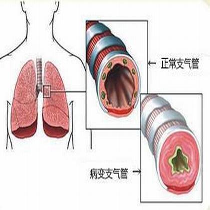 慢性支气管炎偏方 闻蒜泥味有用吗