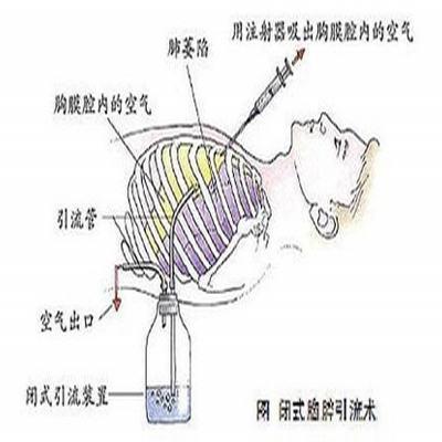 气胸是怎么回事 空气竟会漏气如胸腔