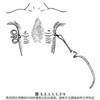 漏斗胸手术风险大吗 进行手术是否能够根治漏斗胸