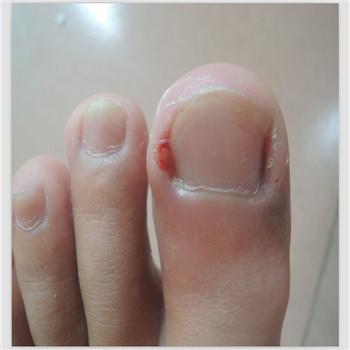 大母腳趾甲溝炎 剪指甲也有方法講究
