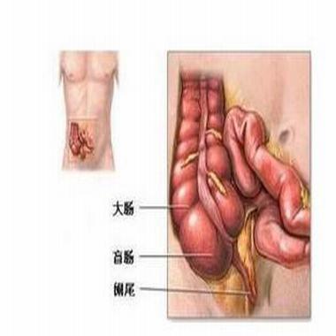 阑尾炎在哪里会痛吗