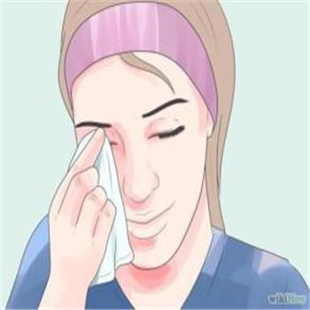 麦粒肿症状会出现眼睑肿胀吗