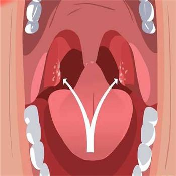 扁桃体发炎症状是喉咙发痒吗