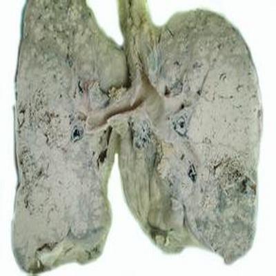 肺癌肝轉移典型癥狀是肝區疼痛