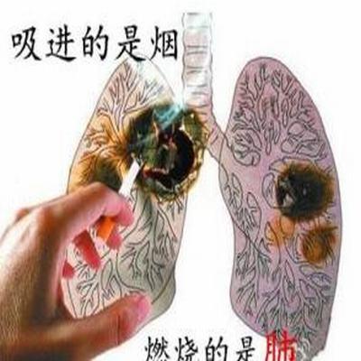 肺癌的轉歸(預后)是什么