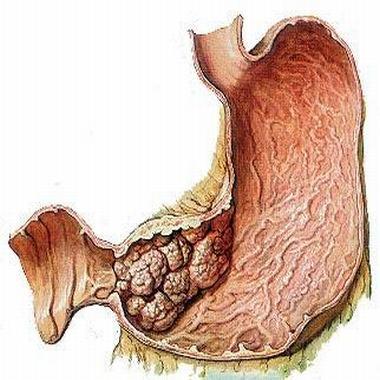 胃癌晚期能活多久 坚持治疗有帮助