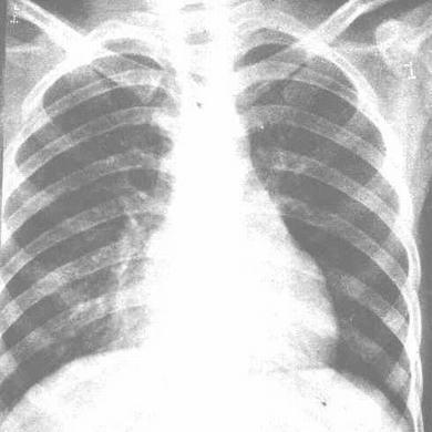 肺炎片图片图解