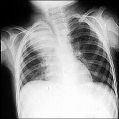 宝宝肺炎会出现什么症状