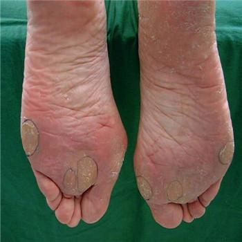 脚外观部位名称图解