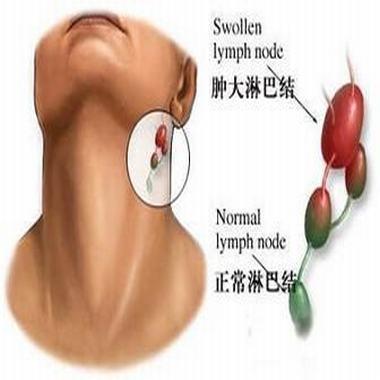 淋巴结肿大的早期症状